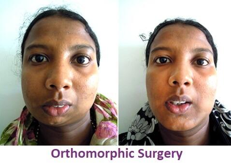 Facial Asymmetric Surgery