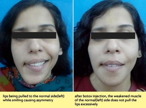 Lip Revision Surgery