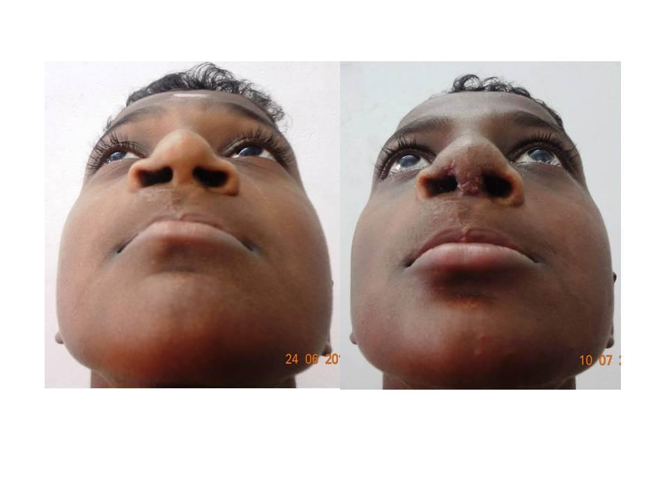 Rhinoplasty (Nose surgery)