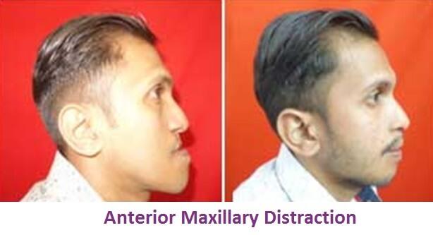 Anterior Maxillary Distraction