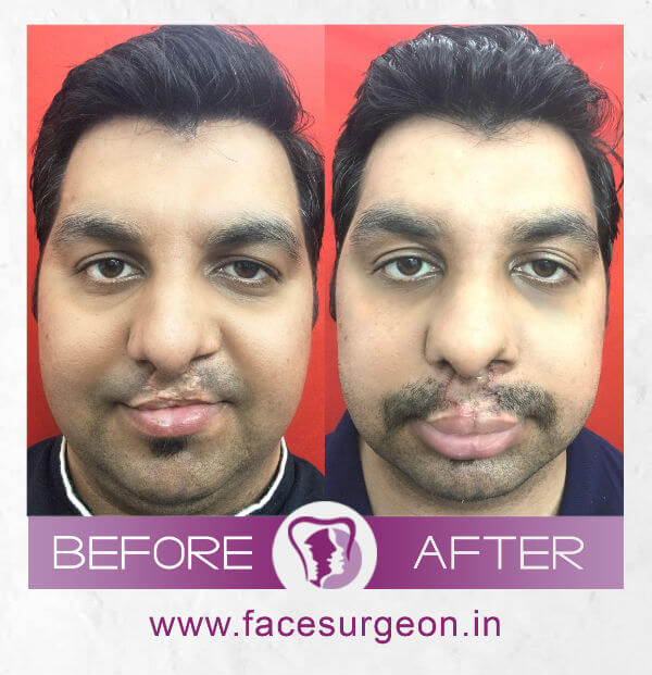 Before and After image of Lip Revision – Front View