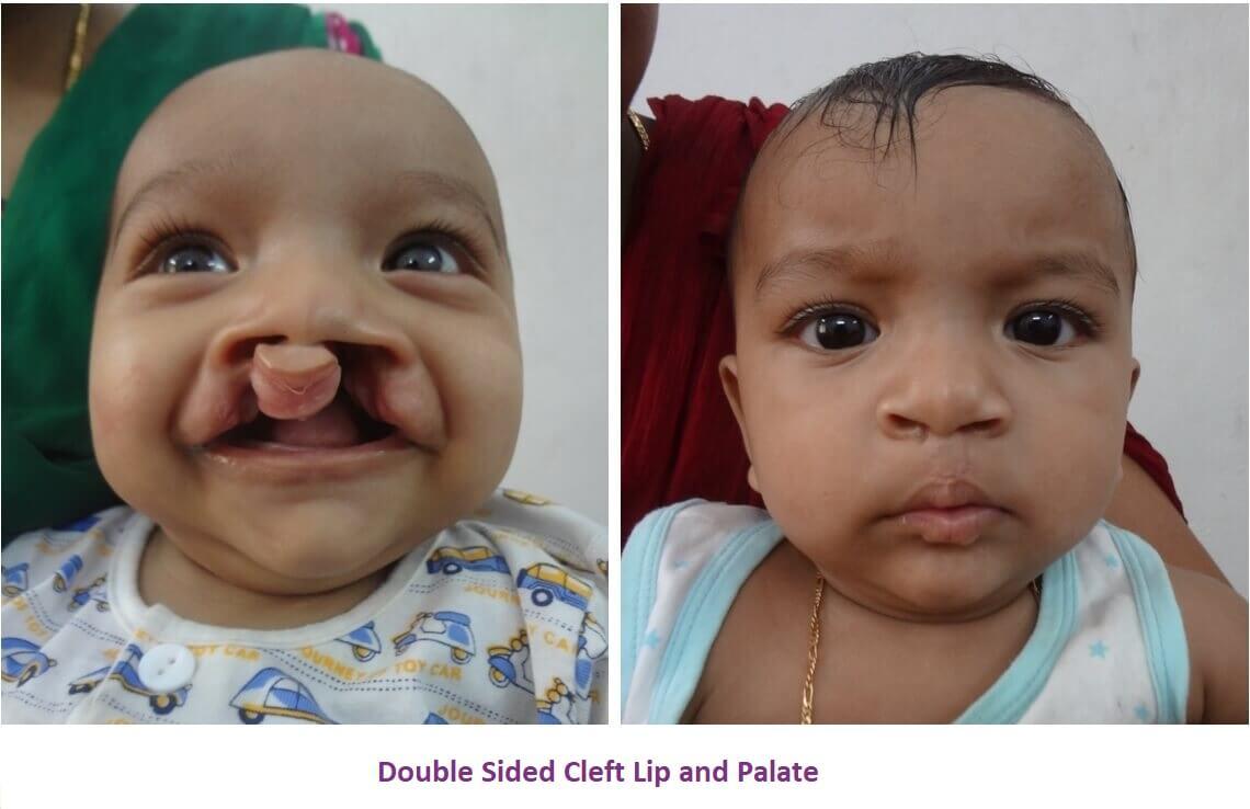 Cleft Lip Surgery