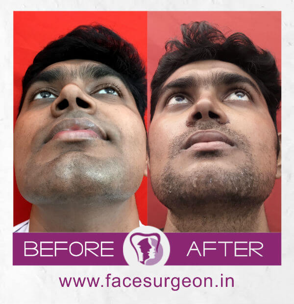 Facemakeover Genioplasty and angle osteoplasty – Front View