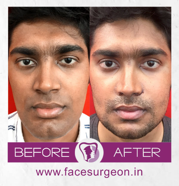 Facemakeover